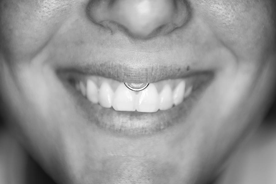 smiley piercing - Subliminal Tattoo Family